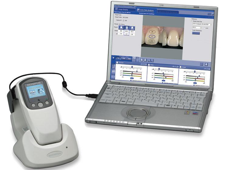 歯科用分光測色計クリスタルアイの精度と開発秘話