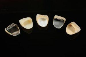 歯科用金属アレルギーとメタルフリーレストレーション