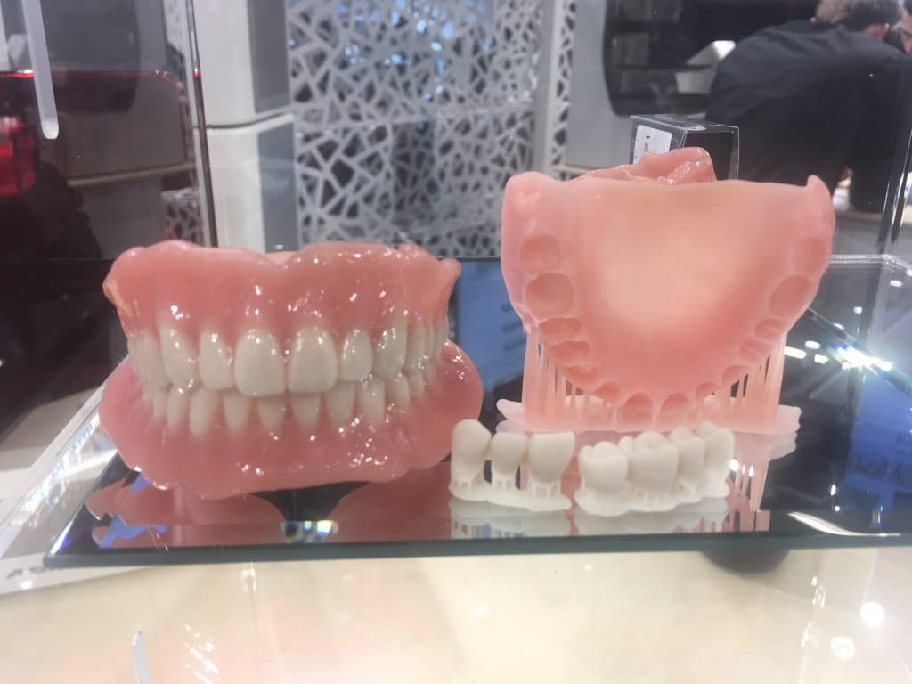 3Dプリンターのデンチャー