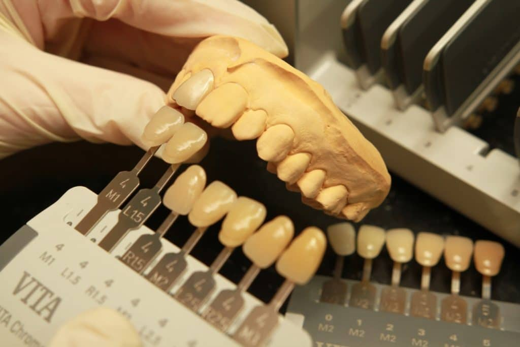 歯科医院で役に立つオススメ技工機材&便利ツール10選