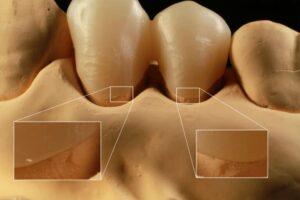 ラボ用CAD/CAMセレックinLabを用いたデジタル歯科技工の精度